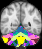 Buckner2011_JNeurophysiol_17networks_TightMask_axial.png