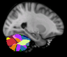 Buckner2011_JNeurophysiol_17networks_cerebellum-24.png