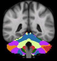 Buckner2011_JNeurophysiol_7networks_cerebellum-44.png
